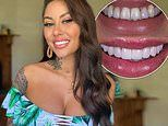 The Bachelors Jessica Brody shows off her new smile after years of 'bullying'