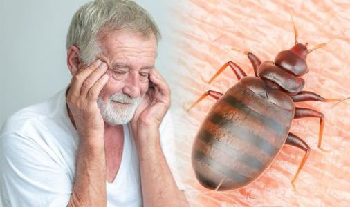 Bed bug bites: Have you been bitten by the critters? The signs to look out for