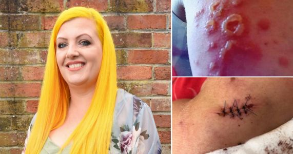 Mum who is allergic to sunshine blisters so badly her skin has to be stitched up
