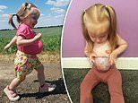 Meet the two year old toddler whose organs are OUTSIDE of her body