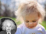Baby girl is nicknamed 'Einstein 2.0' for rare condition which her white hair stand on end