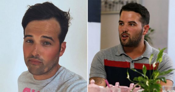 Towie's Ricky Rayment bravely opens up about living with alopecia in candid post: 'I'm very self-conscious about it'