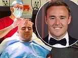 Coronation Street's Alan Halsall defends decision to get a second hair transplant