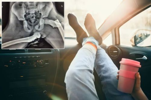 X-ray shows woman's crushed hips after car crash when her feet were on dashboard