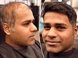 Hairdresser goes viral with videos showing bald men transformed by non-surgical hair replacements