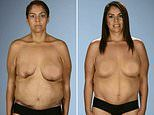 Mother-of-seven's nipple turns BLACK after botched surgery