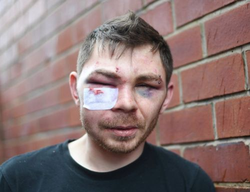 Dad beaten so badly he can's see his daughter as injuries may frighten her