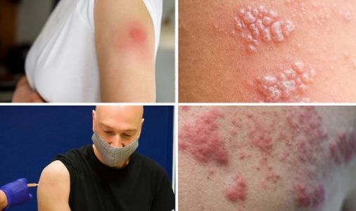 Pfizer vaccine side effects: Six cases of shingles reported - are you at risk?