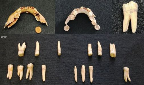 Archaeologists in 9,000-year revelation. rotting teeth plagued ancient man too
