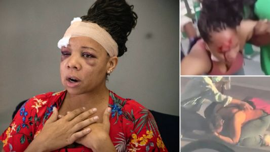 Cops cracked peaceful protester's skull with rubber bullet as she ran away from police