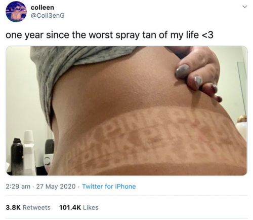 Woman's midriff printed with Victoria's Secret logo after tanning fail