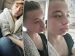 Mother in stitches as teenage daughter gets stuck with duck lips for two days