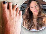 Esther Anderson reveals she injured herself in quarantine and shares shocking photo