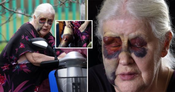 Pensioner, 79, left black and blue by thieves trying to steal mobility scooter