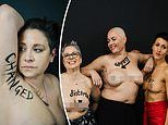 Brave cancer patients reveal their scars to show the public the 'real face' of the disease