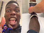 Paul Pogba hands Manchester United boost after getting ankle cast removed