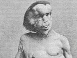 Plans for a £100,000 statue of Elephant Man sparks row in his hometown of Leicester
