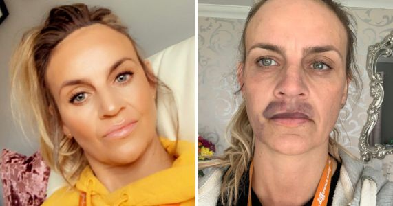 Woman's cheap lip fillers done at home in lockdown go horribly wrong as she's left with severe bruising