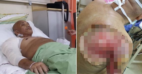 Man's arm almost fell off from diet almost entirely of fizzy drinks