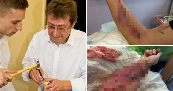 Man's arm 'exploded' after catheter was put in wrong