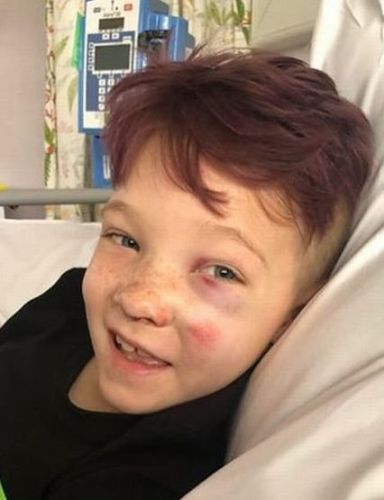 Boy, 9, who loved to dance has leg amputated after being hit by motorbike