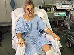 Olympian and eight-time world champ Caroline Buchanan on her three-year battle after car accident