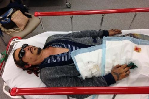 Johnny Depp's gruesome severed finger injury shown in gory court pictures