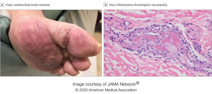 Some coronavirus patients develop rashes, skin-reddening, and lesions that may be signs of underlying blood clots