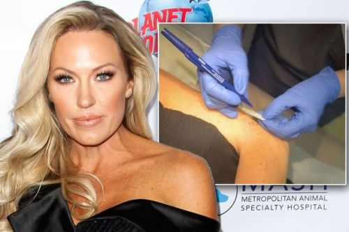 RHOC's Braunwyn Windham-Burke says she's got skin cancer and tells fans to 'get checked'