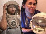 Woman with rare genetic condition wears 'space helmet' to protect her skin from the sun