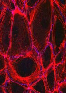 SPECTACULAR NIH MICROSCOPY IMAGES AVAILABLE