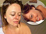Emily Atack showcases her natural freckles as she goes make-up free in a series of sultry snaps