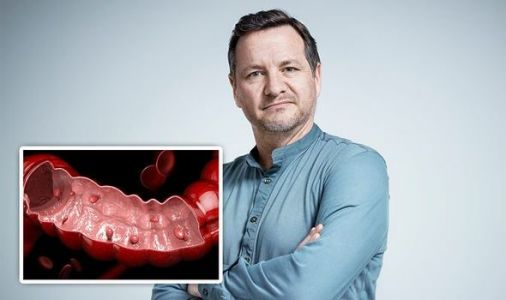 Bowel cancer symptoms: Polyps can develop into the deadly disease - what are they?