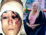 Tattoo Fixers: Woman was left with skin torn from face to skull following near-fatal car accident