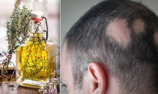 Hair loss treatment - the £2 essential oil to stimulate hair growth and prevent alopecia