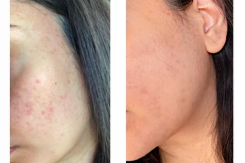 The new Q+A £8 miracle toner that transforms acne prone skin in three weeks