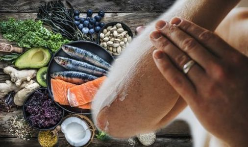 Psoriasis treatment: How food and lifestyle can impact the condition - tips from an expert