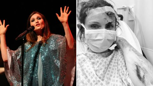 Sophie Ellis-Bextor rushed to A&E after bike accident