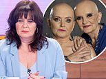 Coleen Nolan says she's struggling to decide whether to have a double mastectomy