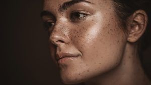 The Best Products For Skin Pigmentation and Acne Scars