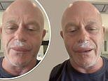 Ross Kemp looks unrecognisable following wasp attack to his face and thanks NHS for treating injury