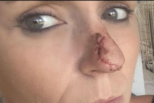 Dog attack victim whose nose was bitten off refused in shop for not wearing mask