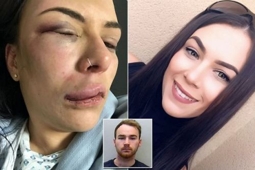Woman shares pictures of horrific injuries caused by violent ex to help others