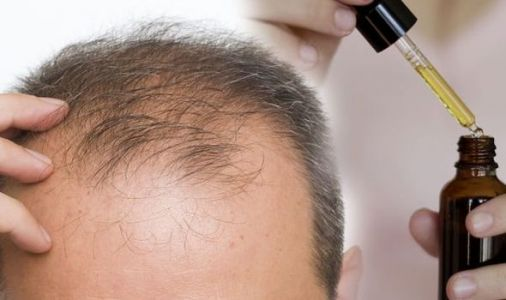 Hair loss treatment: An oil which reduces hair loss by balancing oil producing hair glands