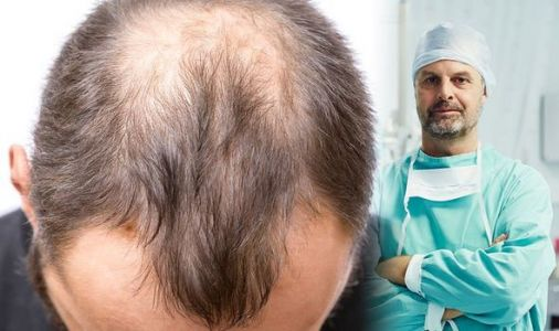 Hair loss treatment: What you need to know about a hair transplant