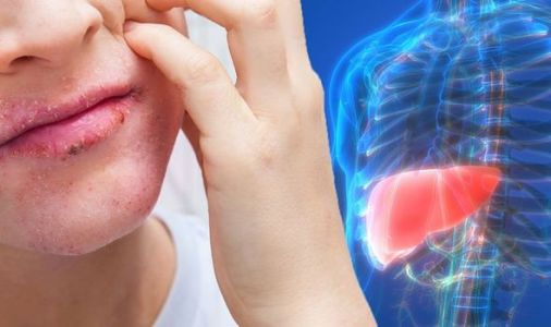 Fatty liver disease: Study identifies 30 possible symptoms of the deadly condition