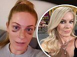 RHONY's Leah McSweeney proudly reveals bruises from a nose job: 'I am not trying to hide anything'