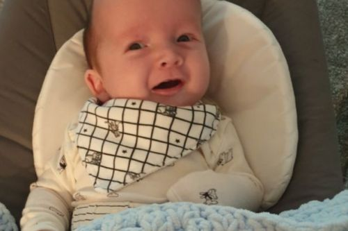 Tiny Scots baby with rare skull condition set for surgery to reshape head