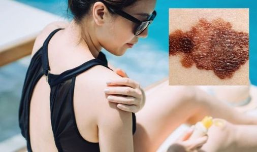 Skin cancer symptoms: What does skin cancer look like? Five signs you shouldn't ignore