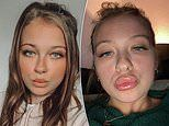 Mother-of-two issues stark warning after filler ballooned her pout to TRIPLE its size
